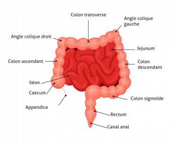 cancer colon gauche)